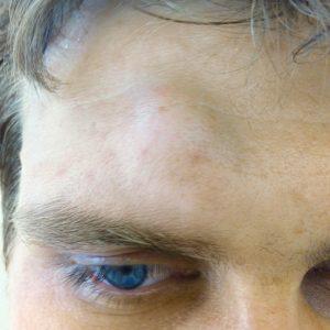 lipom an der stirn